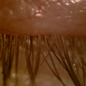 demodex blepharitis eyelashes
